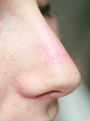 Nasenkorrektur mit Hyaluron nachher