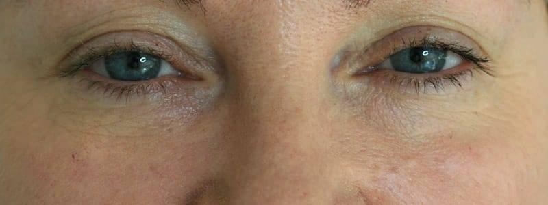 Faltenunterspritzung Tränenrinne - nachher