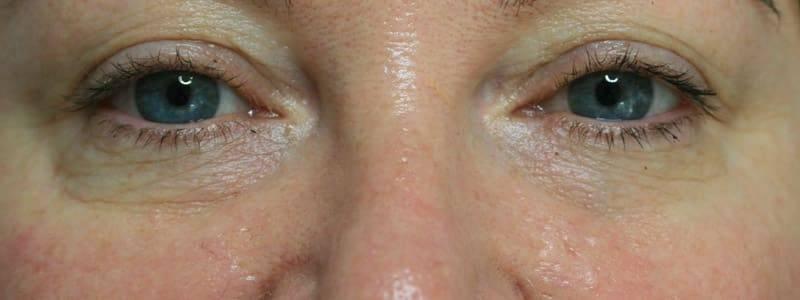 Faltenunterspritzung Tränenrinne - vorher