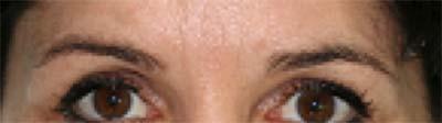 Mikrobadling Augenbraue vorher