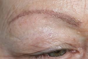 Mikroblading Augenbraue vorher