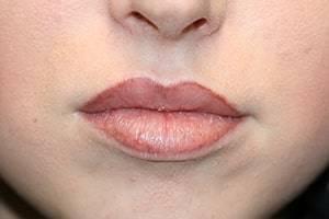 nach Permanent Make-up Lippen und Lippenunterspritzung