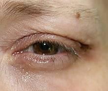 Oberlidstraffung in Behandlung mit dem Plasma Med Dermal