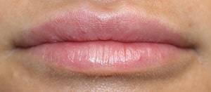nach einer leichten Lippenunterspritzung oben und unten