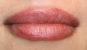 lippenunterspritzung oberlippe
