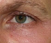 1 Woche nach der Behandlung mit Plasma Med Dermal