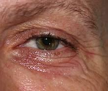 Unterlidstraffung vor der Behandlung mit dem Plasma Med Dermal