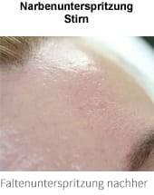 narbenunterspritzung-stirn