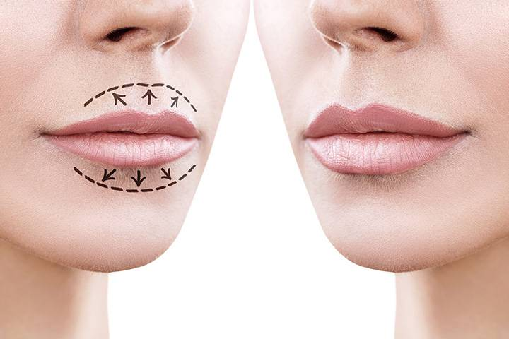 Unterspritzung Lippenaugmentation
