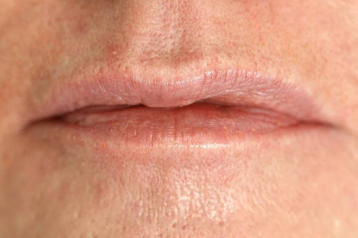 Lippenunterspritzung-vorher