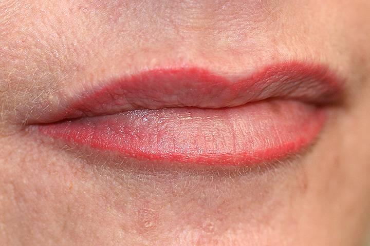 Lippenunterspritzung-nachher